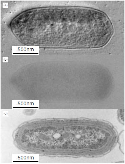 図4 ヒルベルト微分法による    シアノバクテリアの電子顕微鏡観察像※2